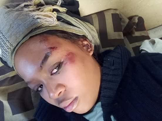 'How my husband of over 10 years ran over me with his car' - South African woman shares disturbing story