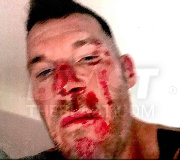 US musician Tim Commerford left bloodied after his estranged wife allegedly assaulted him