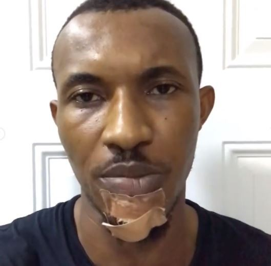 How police and LASTA officialsruffled up, beatand dragged me on the tarred ground - Actor, Gideon Okeke