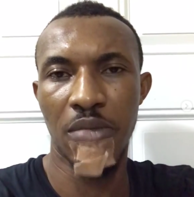 Lagos police commissioner orders investigation into assault of actor, Gideon Okeke