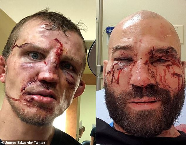Bare-knuckle boxing: Opponents show off the gruesome injuries they did to their faces.