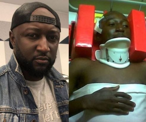 First ever winner of Brother Naija,Katung Aduwak shares photos from a ghastly car crash he survived 15-years ago
