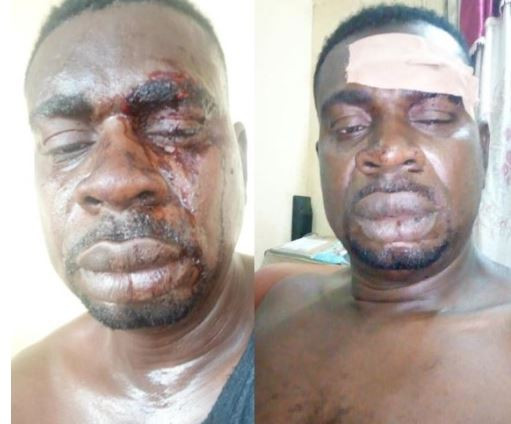 Veteran musician, Baba Fryo shares bloody photos of his face says, 'I was humiliated by unknown soldiers'