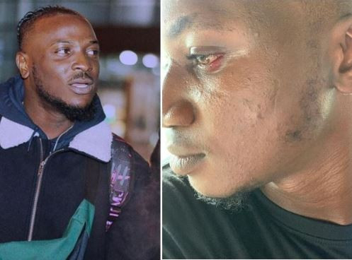 How Davido's artist, Peruzzi slapped and assaulted me in Bayelsa State - Social media influencer, Pamilerin cries out