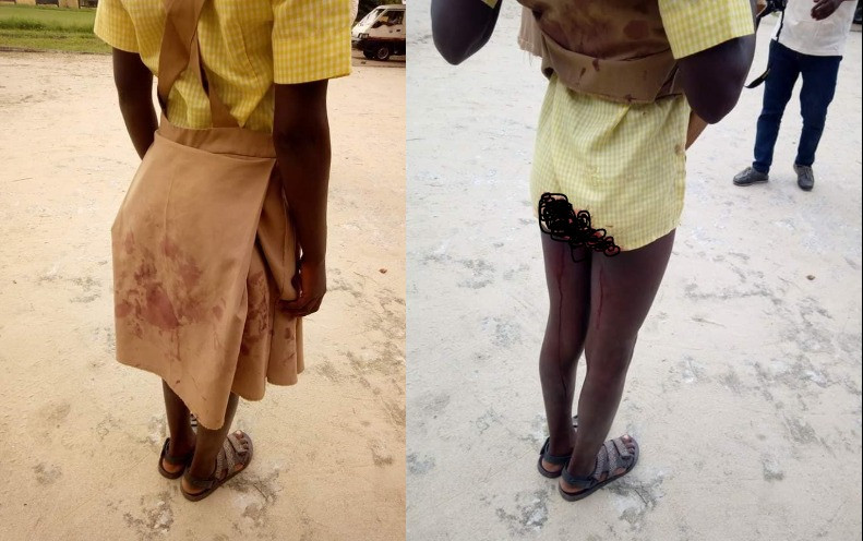 Graphic: 13-year-old left with blood stains on her uniform after 40-year old man abducts and rapes her in Rivers