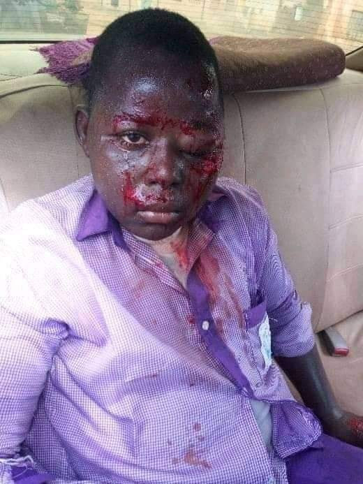 Student brutally beaten by his teacher in yobe