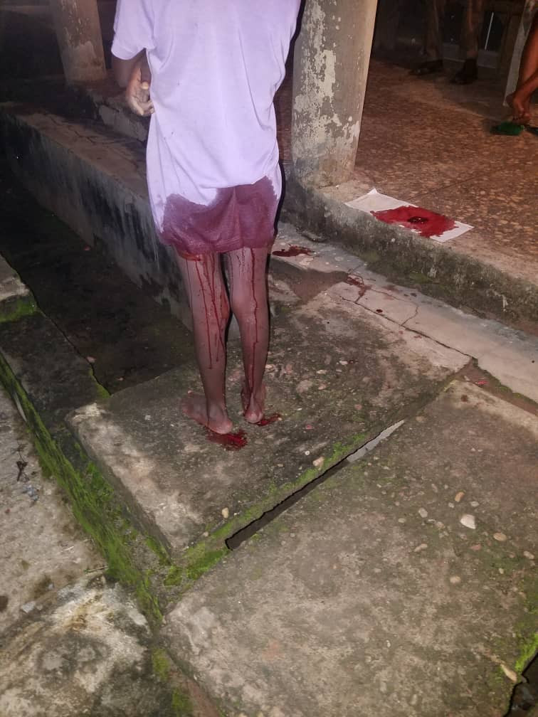 Little girl dragged into a shop and raped in Ondo state lindaikejisblog