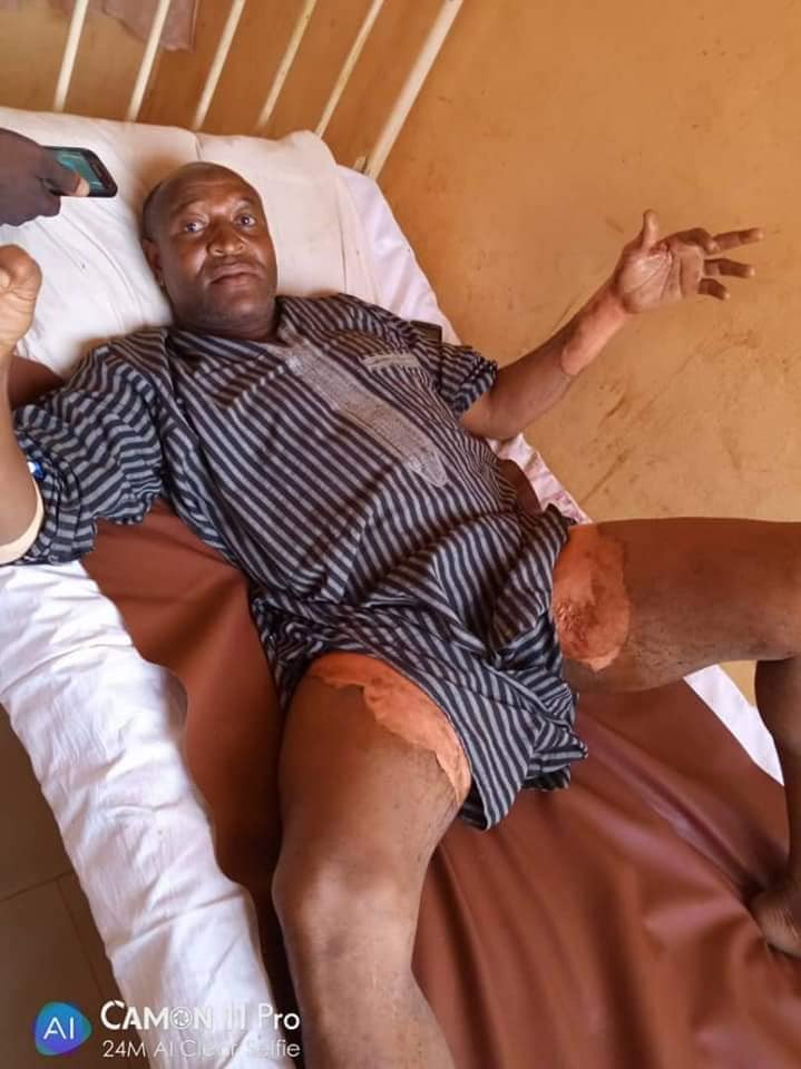 Man suffers severe burns around his private part after his wife poured hot water on him in Kano (photos)