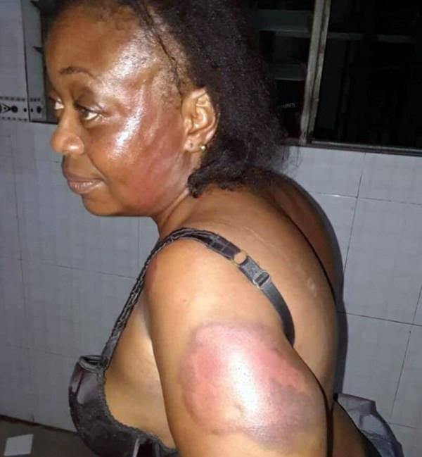 Nigerian lawmaker allegedly beats woman forces her to walk naked lindaikejisblog  1