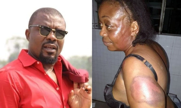 Nigerian lawmaker allegedly beats woman forces her to walk naked lindaikejisblog