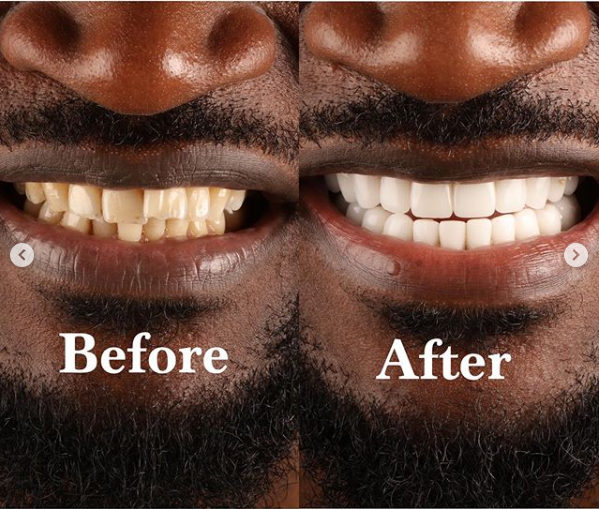 Peter Okoye apologizes to ladies he has kissed after fixing his teeth and undergoing teeth whitening lindaikejisblog 3