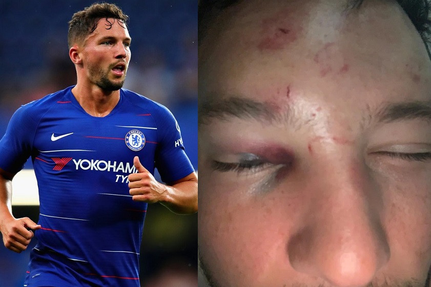 Chelsea star Danny Drinkwater 'attacked by a gang of six thugs' after he 'tried to chat up his fellow footballer's girlfriend' (Photos)