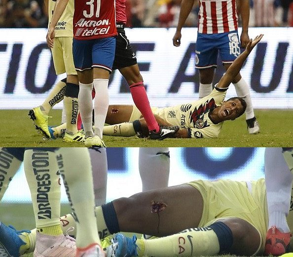 Ex-Barcelona star Giovani dos Santos suffers gruesome injury as his leg is torn open in horror challenge (Photos)