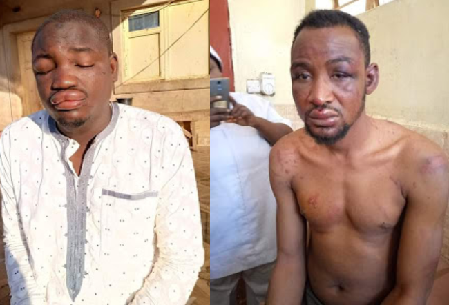 Photos of the eight musicians brutally beaten on alleged order of Kebbi Governor's aide for criticising the Governor in their songs