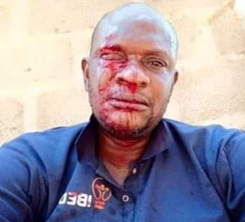 PHCN official attacked while distributing bills
