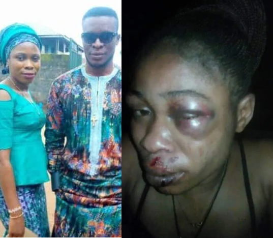 Woman hospitalized after she was allegedly brutalized by her husband for refusing to abort their 3-month-old pregnancy