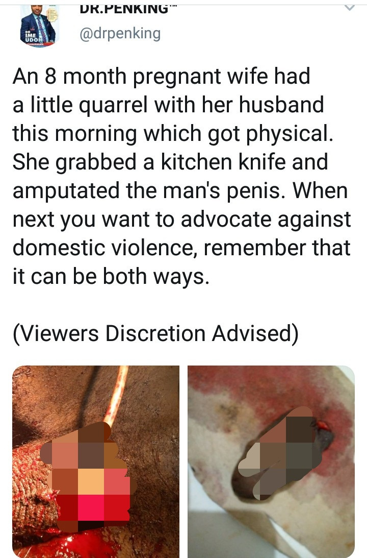 Identity of pregnant woman who chopped off her husband's penis is revealed as her brother-in-law explains why she did it, All9ja