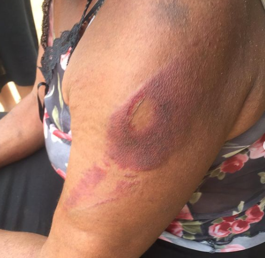 Twitter user shares photos of injury her 58-year-old mother sustained after being assaulted by a policeman 2