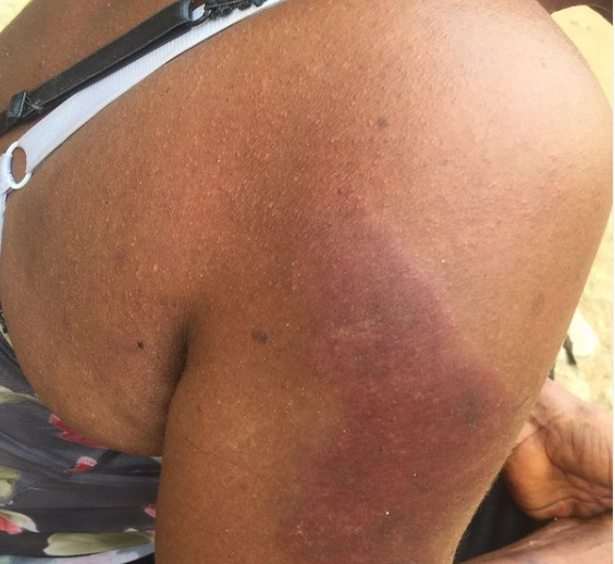 Twitter user shares photos of injury her 58-year-old mother sustained after being assaulted by a policeman 4