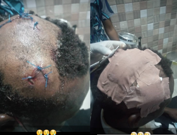 Caterer allegedly attacked by groom's brothers over small chops at wedding (graphic photos)