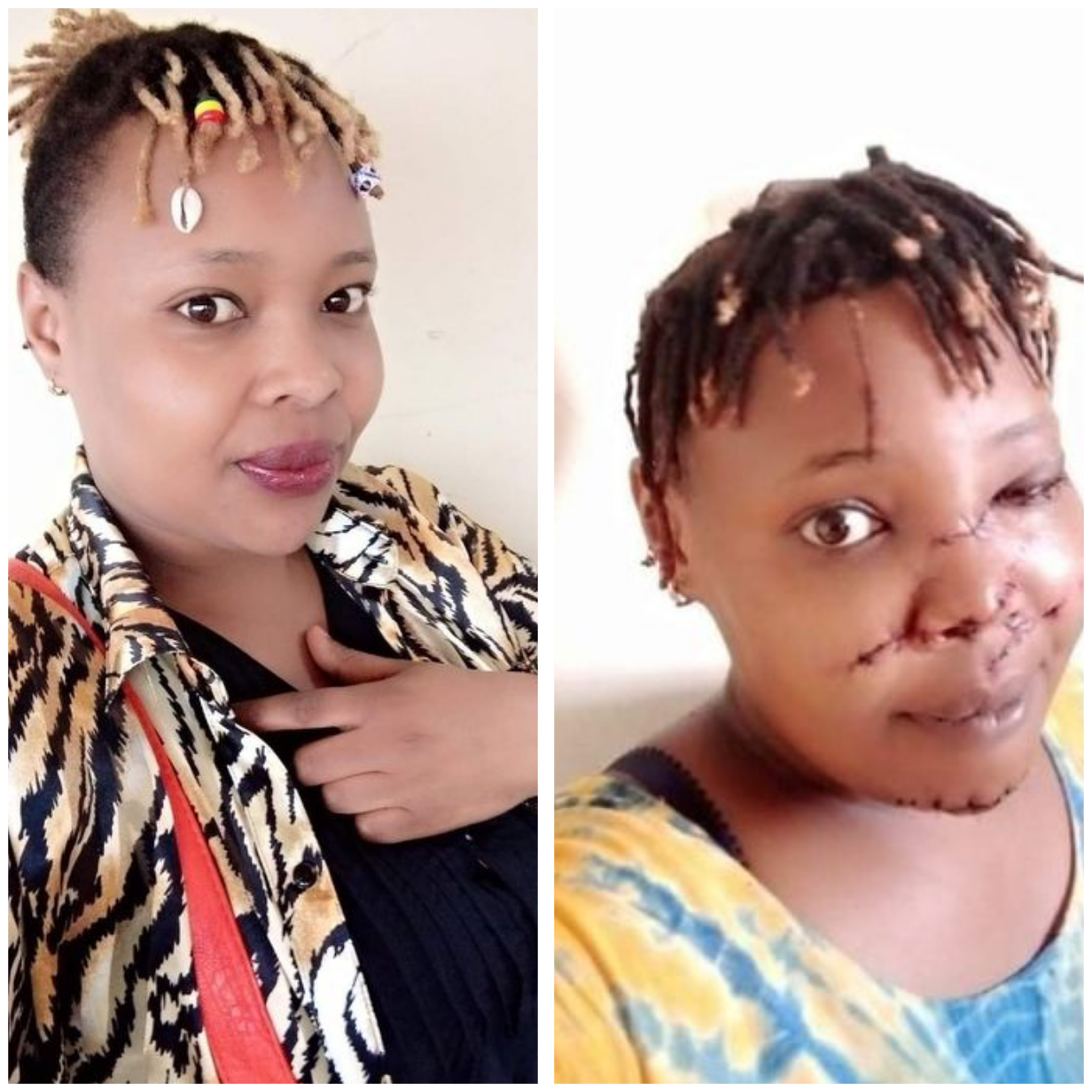 Kenyan man slashes ex-girlfriend's face with sword