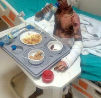 Thieves set boy, 12, on fire so he won