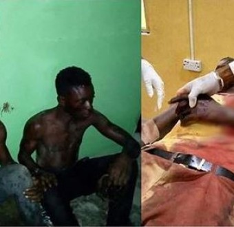Three armed robbers arrested for choppingoff youth corper's hand in Bayelsa State