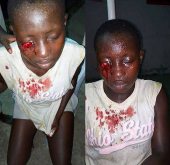 Graphic Photo: Secondary schoolstudent stabs classmate in the eye for refusing to join cult