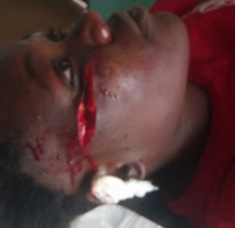 """I regret loving you like my sister"" - Nigerian lady cries out after her best friend slashed her face with razor blade"