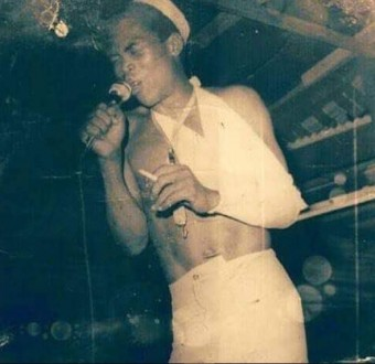 Throwback photo of a wounded Fela Anikulapo Kuti performing on stage bandage and arm-sling
