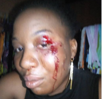 Man accuses a soldier of brutalising his daughter in Abuja (Photo)