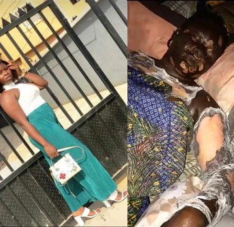 Friends mourn as woman dies after getting burnt following a gas explosion while trying to boil water (graphic photos)